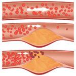 Ecco la fase 5 di intossicazione dell'organismo