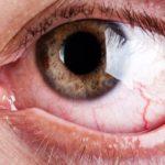 Omega-3 e sindrome dell'occhio secco