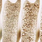 Osteoporosi: ruolo di calcio, magnesio e zinco