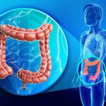 Conosci la Pulizia Intestinale e quali sono i Sintomi di Intossicazione?