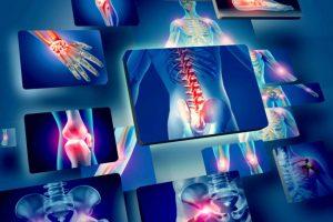 B-Luron dolori articolari